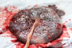 Placenta Picture